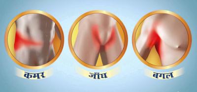 itch in hindi