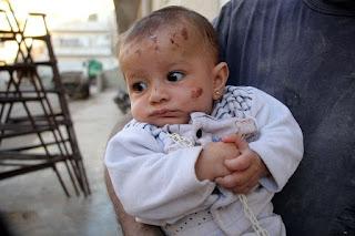 Sepenggal Kisah Korban Serangan Udara di Suriah