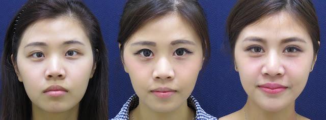彤顏診所-雙眼皮-開眼頭費用-眼神放大術-整形外科-蒙古摺-雙眼皮手術費用-混血瞳