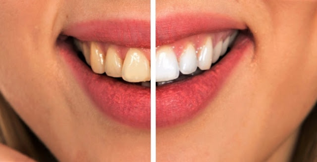 زيارة طبيب أسنان بانتظام