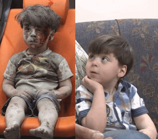 Photo of Syrian boy covered in blood