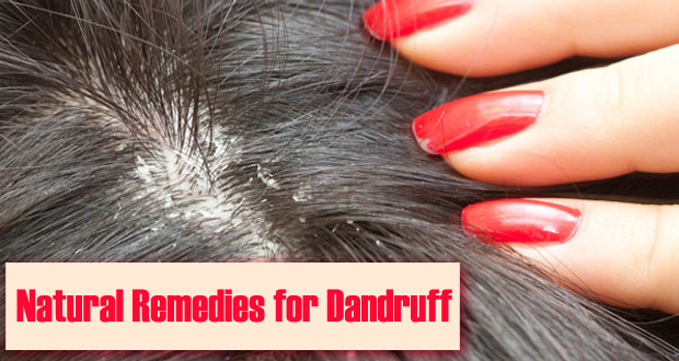 Top 7 Permanent Home Remedies For Dandruff !