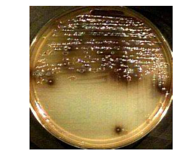 Gambar: Salmonella typhii dalam media Bismuth Sulfit Agar