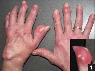 Tác Hại Bệnh Gout