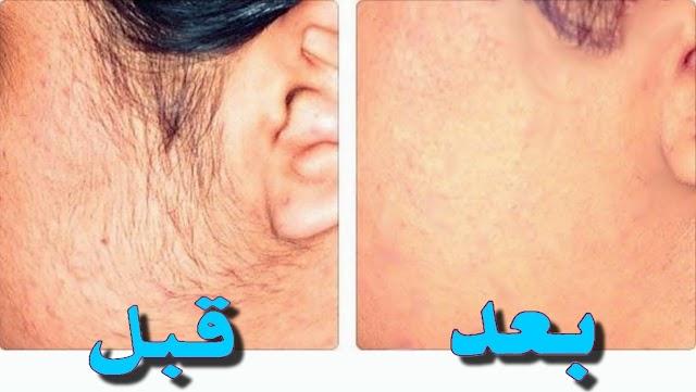 طرق طبيعيه لازالة شعر الوجه الزائد