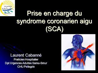 Prise en charge du syndrome coronarien aigu (SCA).pdf
