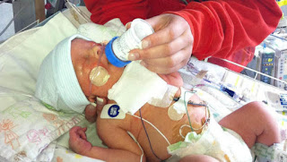 Katie Rice's son Tucker underwent fetal heart surgery when she was 24 weeks pregnant with him.
