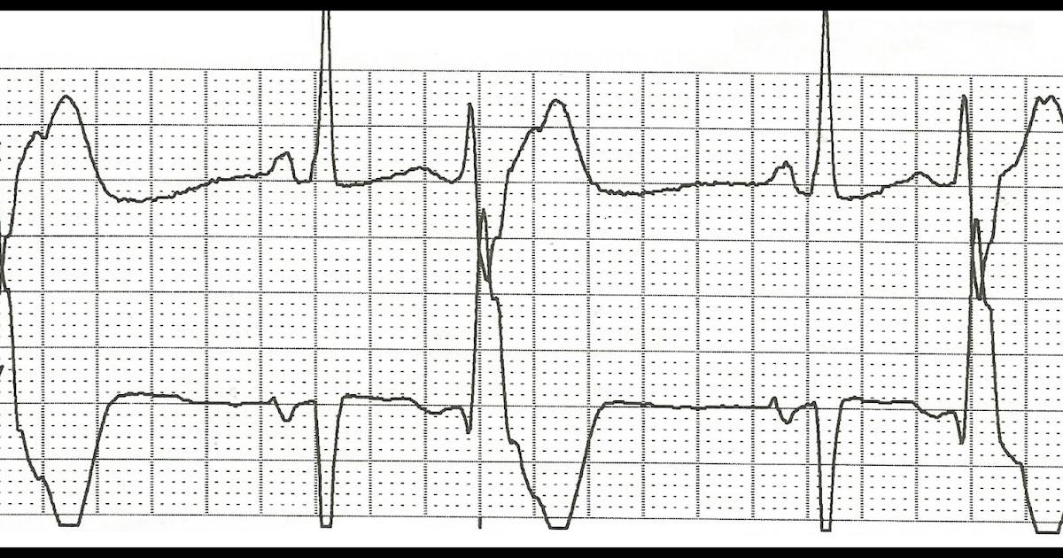 Float Nurse: Practice EKG Rhythm Strips 175