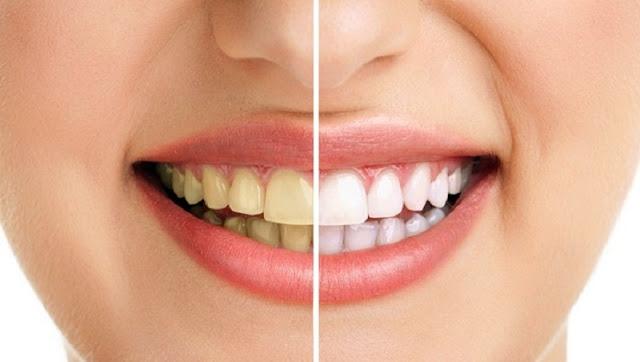Cara Mudah Memutihkan Gigi Dengan Minyak Kelapa Dan Garam