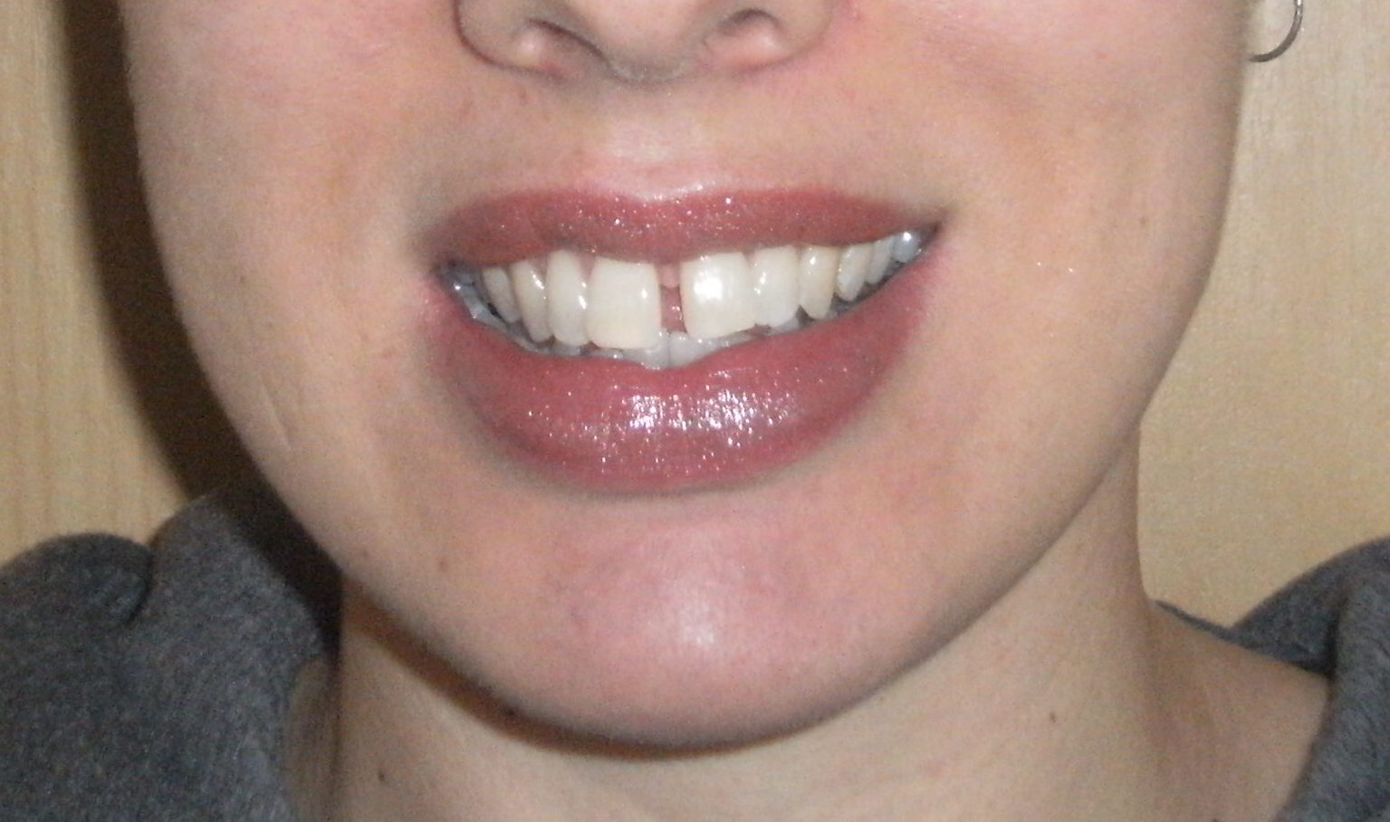 Welcome To My Invisalign Blog Teeth Straightening