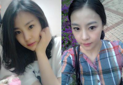 3 bulan sesudah korea face contouring surgery di Wonjin Plastic Surgery