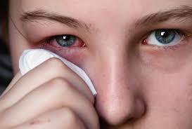 Pengobatan Radang Saraf Mata Secara Herbal