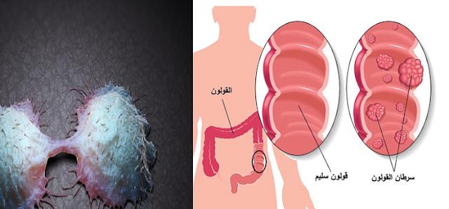 انتبه... 4 علامات غير إعتيادية لسرطان القولون ! اذا لاحظت هذه العلامات عليك باستشارة الطبيب!