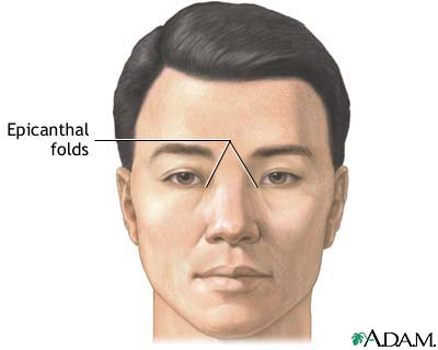 Facial anomalies syndrome #15