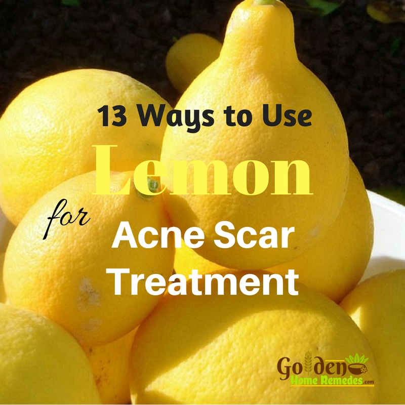 Best Natural Ingredients To Get Rid Of Acne Scars