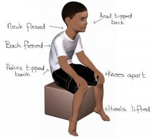 Sitting posture is poor in children with low muscle tone
