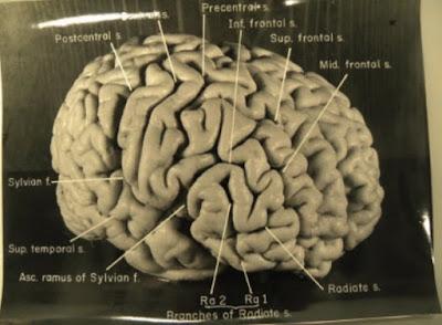 Αϊνστάιν: ένας ιδιαίτερος εγκέφαλος (δομή / μέγεθος).