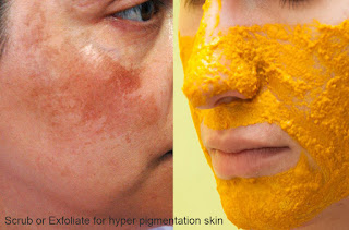 How to make Scrub or Exfoliate for hyper pigmentation skin