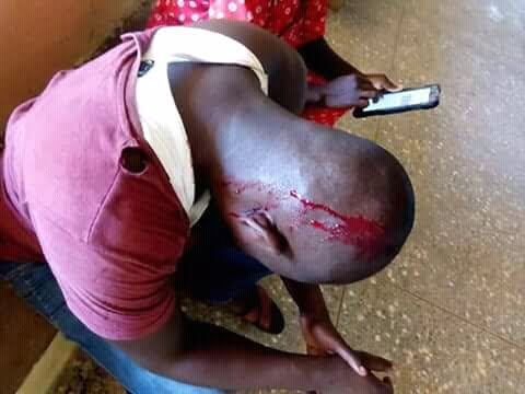 A MAN ATTACKED, BEATEN BY THUGS AND BADLY INJURED IN BENUE