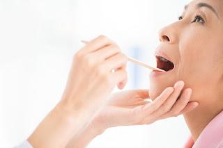 Tanda-tanda Kanker Tenggorokan Yang Perlu Kita Ketahui