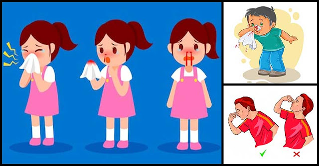 Nose Bleeding: Reasons Behind It And Its Home Remedies