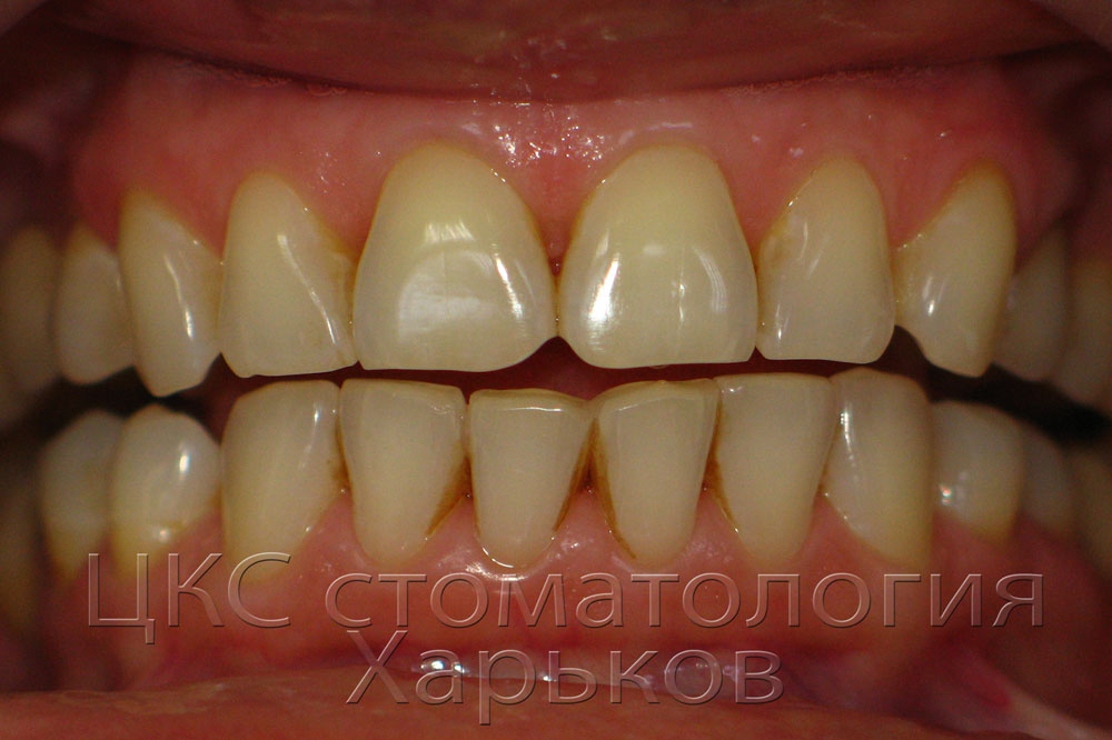 Пародонтологическая подготовка к ортодонтическому лечению