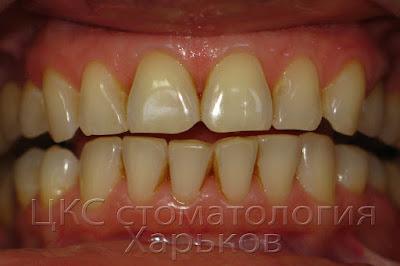 На зубах налет и снижение уровня расположения десневых сосочков
