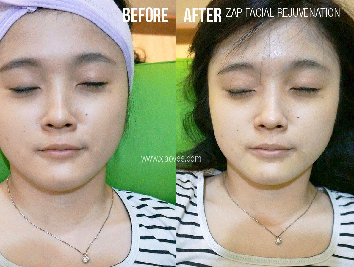 ZAP permanent hair removal, ZAP clinic, ZAP Facial rejuvenation, ZAP Surabaya, ZAP before after