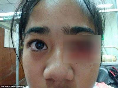 Mengerikan! Gadis Cilik Ini 'Berkeringat' Darah Setiap Kali Sakit Kepala. Kok Bisa?