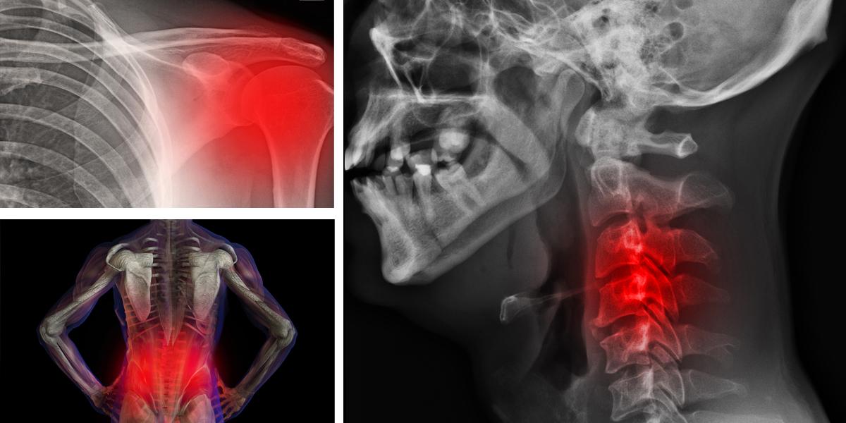 Resultado de imagen para Tu estado emocional puede causar 7 tipos de dolores en el cuerpo