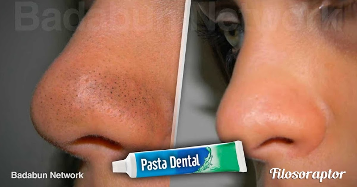 pasta acné puntos negros eliminar cara belleza salud