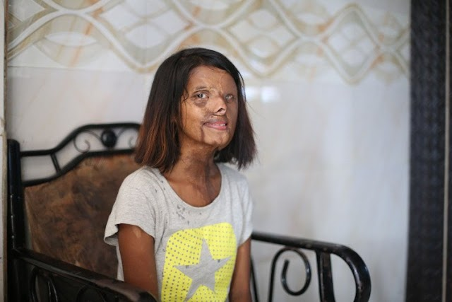 Acid Burnt At The Age Of Two, The Story Of This Survivor Is As Moving As It Is Awe-Inspiring