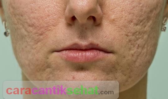 cara mengecilkan pori pori wajah akibat jerawat