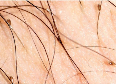 Phthirus pubis nits (eggs) attached to pubic hairs