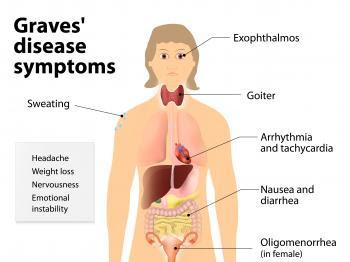 WHAT'S HAPPENING// Graves' Disease