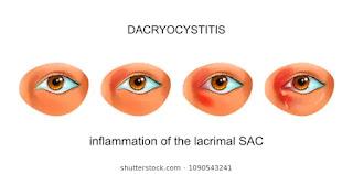 dacryocystitis-www.healthnote25.com