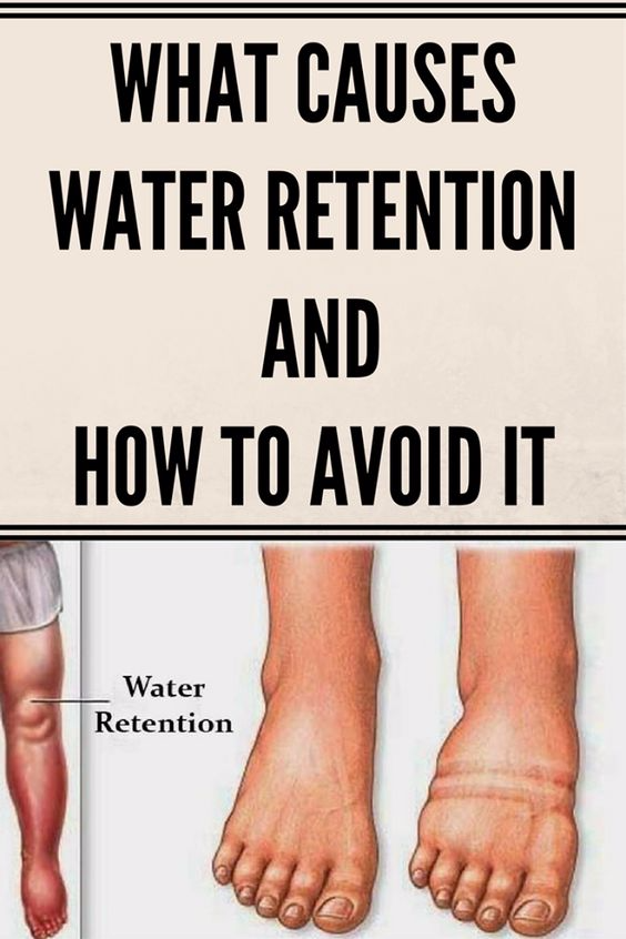 What Causes Water Retention And How To Avoid It  Health Blog. 100 Country Logo. Gryffindor Crest Banners. Grey's Anatomy Banners. Instruction Signs. Impala Decals. Moist Signs Of Stroke. School Fish Murals. Oklahoma Signs