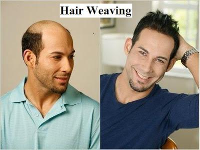 hair transplant kya hai, kaise kiya jata hai or kitne prakaar ka hota hai, fue hair transplant in hindi, fut hair transplant in hindi, hair weaving in hindi