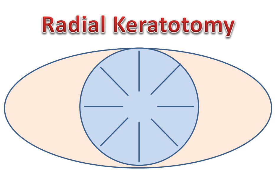 Radial Keratotomy Pictures