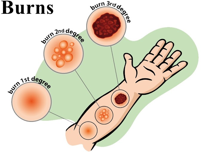 Treatment and other helps to help you recover from burns