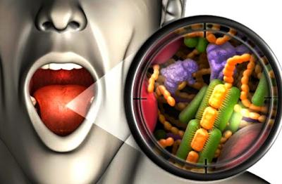 Cara Alami (Ampuh) Menghilangkan Bakteri Dalam Mulut