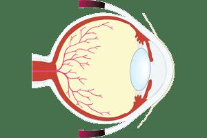 Localización de la retina en la parte posterior del ojo