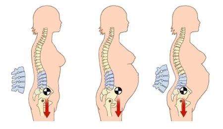 Bentuk tulang punggung selama kehamilan
