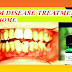 The Best Home Remedies for Gum Disease