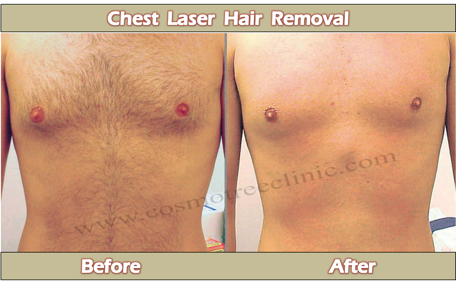 Laser Hair Removal Cost Face Laser Hair Removal Price Best
