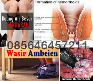 Obat Kampung untuk Penyakit WASIR AMBEIEN