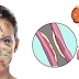 YOUR FACE IS COVERED WITH SIGNS, HERE'S HOW TO TELL WHAT'S WRONG WITH YOUR KIDNEYS, HORMONES AND LIVER