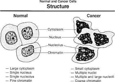 Starving Cancer Cells to Death