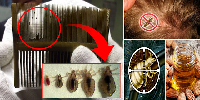 How To Remove Nits Of Lice Within 10 Minutes By Using The Method