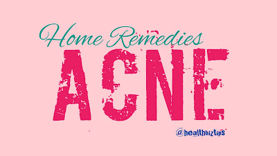8 Home Remedies for Acne - Healthbiztips